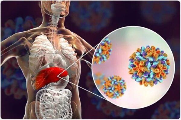 Chronic Hepatitis B Press Release